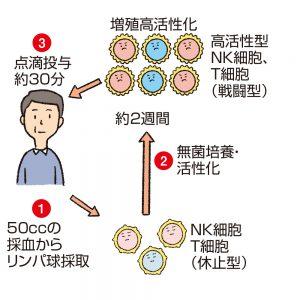 高活性NK細胞療法