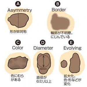 悪性黒色腫(メラノーマ)