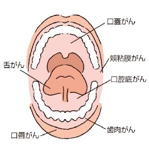 歯茎 に 口内炎
