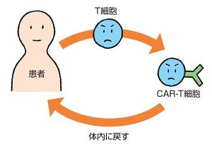 CAR-T細胞療法の仕組み